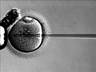 Project taboe - ICSI - echo eerste kindje - kinderwens - zwanger - gezin - verschil IVF en ICSI